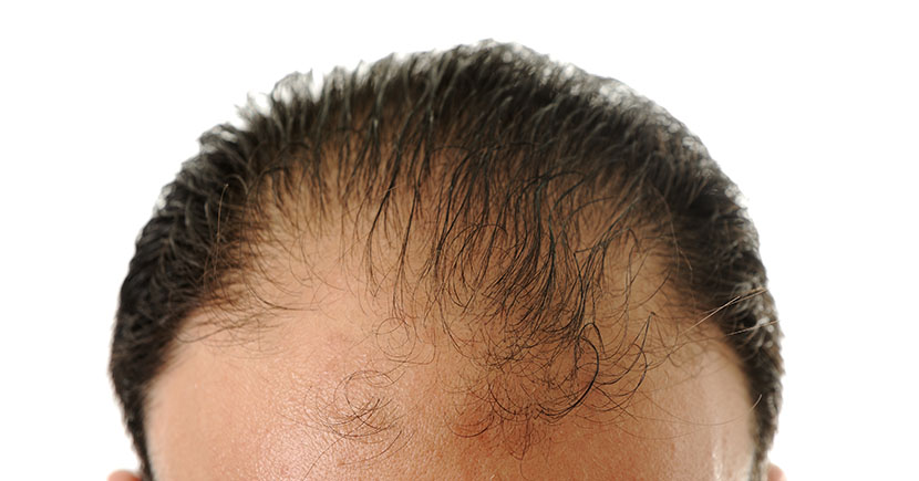 Hair Transplantation – The Basic Know-How