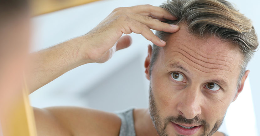 Hair Loss Medication Vs Hair Transplant Surgery