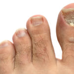 toenail fungus medication
