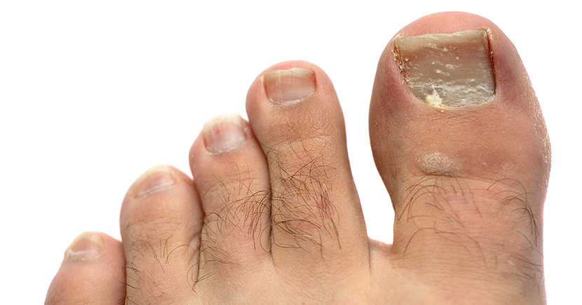 Some easy home remedies for toe fungus